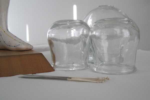 Toumazi Physio Gallery - Cupping