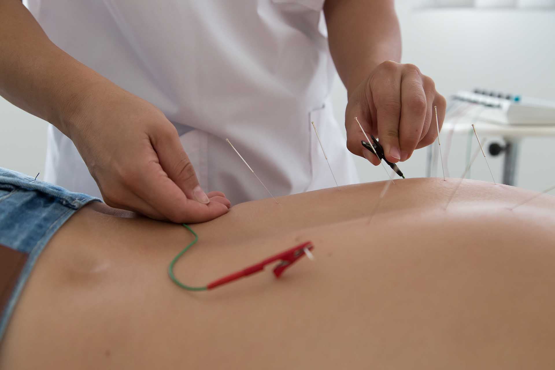 Toumazi Physio Gallery - Electro acupuncture
